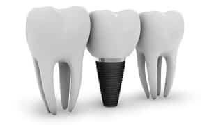 dental-implants-manhattan